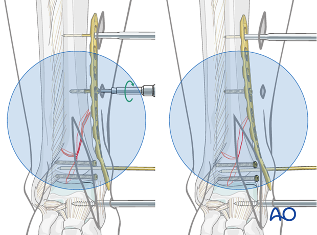 Reduction of the metaphyseal fragment of the distal tibia