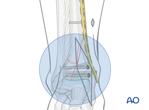 Fixation of the distal fragment of the distal tibia