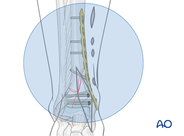 Definitive plate fixation to treat a distal tibia fracture