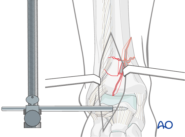 Distractor application in a distal tibia fracture