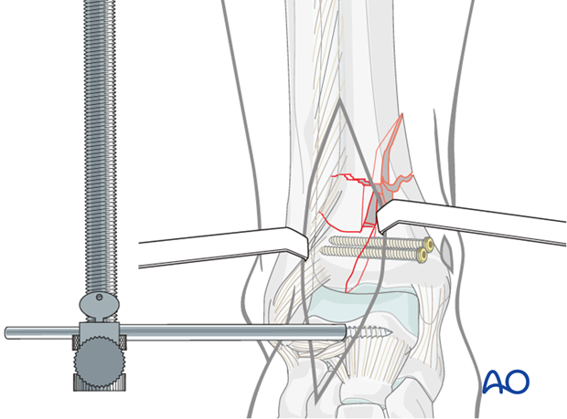 Reduction and stabilization of the articular segment in a complete articular distal tibia fracture