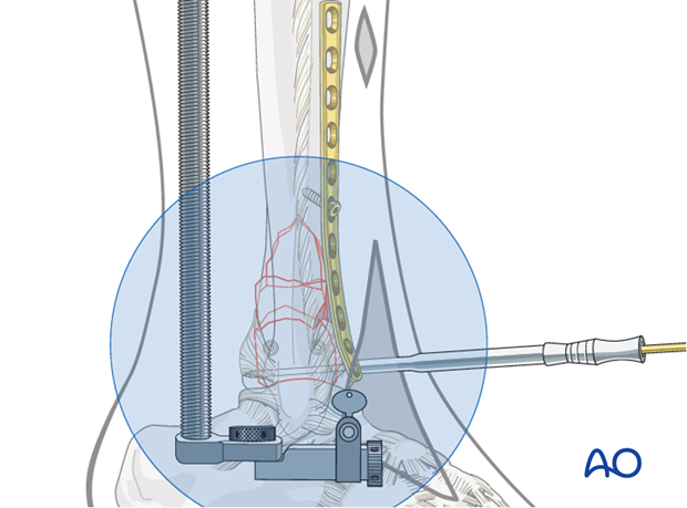 Distal screw positioning for plate fixation to treat distal tibia fractures