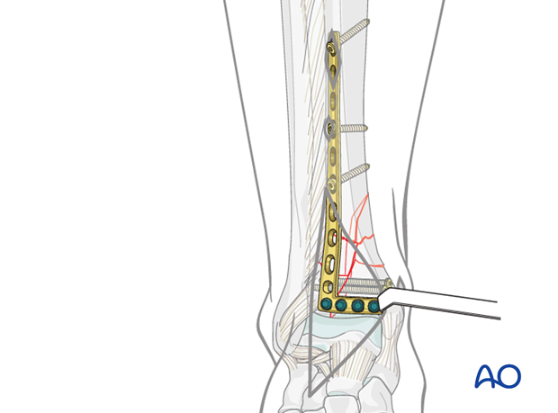 Definitive plate fixation to treat complete articular distal tibia fractures