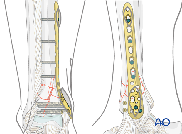 Alternative: MIO fixation to treat complete articular distal tibia fractures