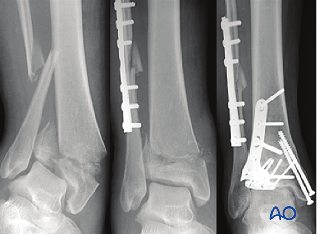 Example of complete articular fracture of the distal tibia treated with screws and plate fixation