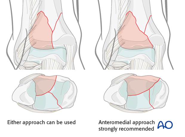 anteromedial or anterolateral approach