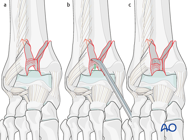 Medial comminution and impaction in a complete articular multifragmentary fracture of the distal tibia