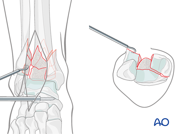 Cleaning the fracture site in a distal tibia fracture