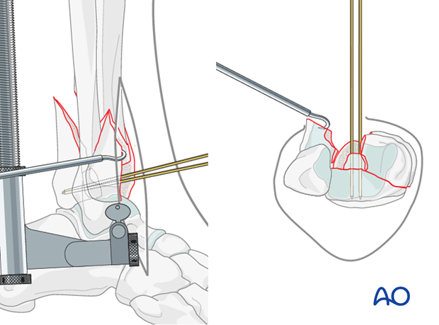 Reduction of the centrally impacted segment in a complete articular fracture of the distal tibia