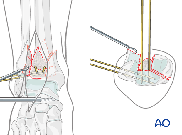 Preliminary fixation with K-wires of the posterolateral fragment in a complete articular fracture of the distal tibia