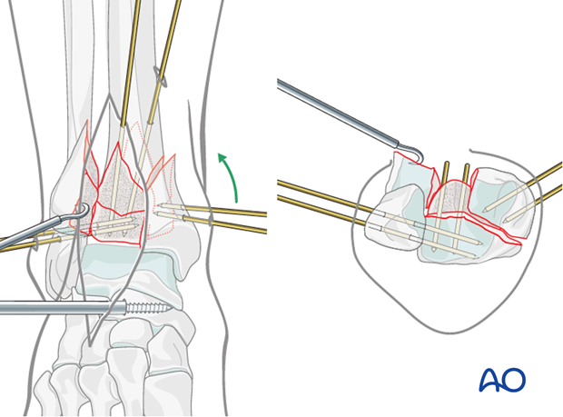 Preliminary fixation of the medial fragment in a complete articular fracture of the distal tibia