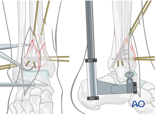 Stabilization of the anterolateral fragments in a complete articular fracture of the distal tibia