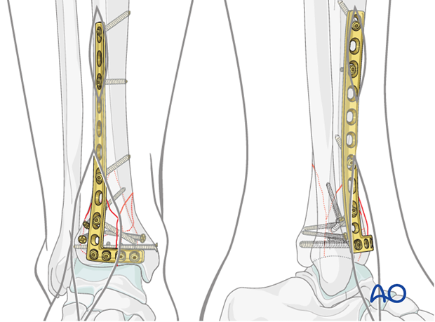 Proximal screw placement in lateral plate fixation in a complete articular fracture of the distal tibia