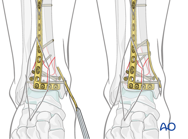 Medial side fixation in a complete articular fracture of the distal tibia