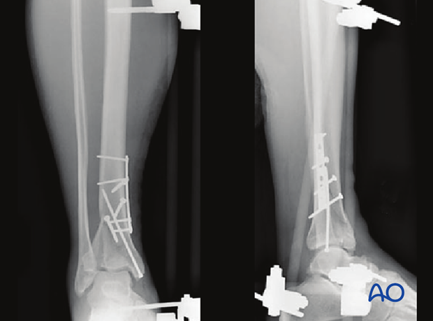 Imaging example of a distal tibia fracture with proximal diaphyseal extensions fixed with plate