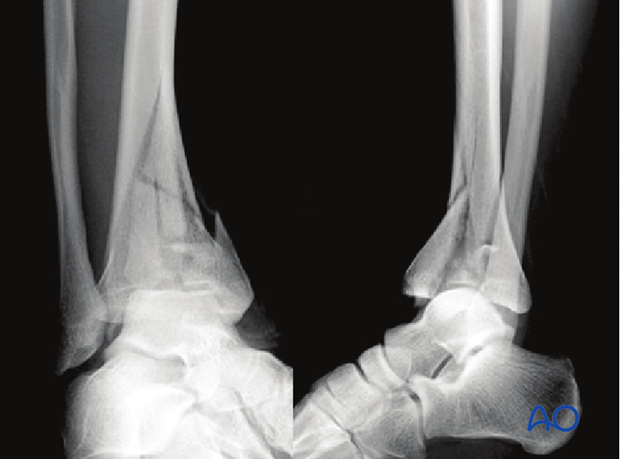 Imaging example of a 3-part multifragmentary complete articular distal tibia fracture