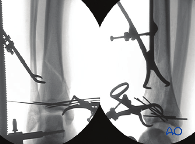Intraoperative fluoroscopy for fixation of a 3-part multifragmentary complete articular distal tibia fracture