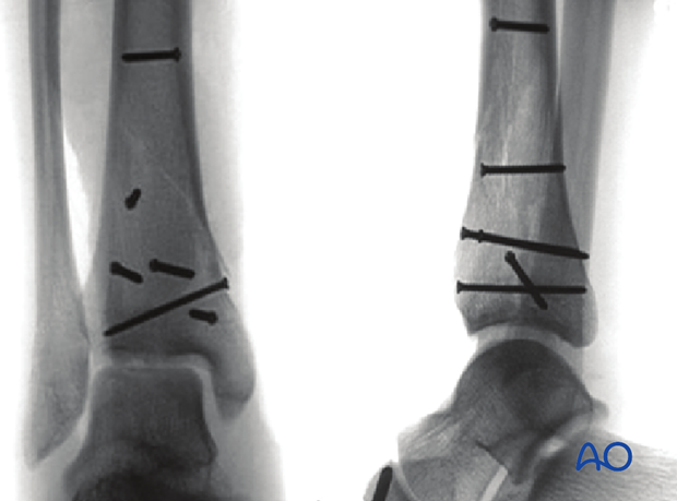 Radiographic example of lag screw positioning for fixation of a 3-part multifragmentary complete articular distal tibia fracture