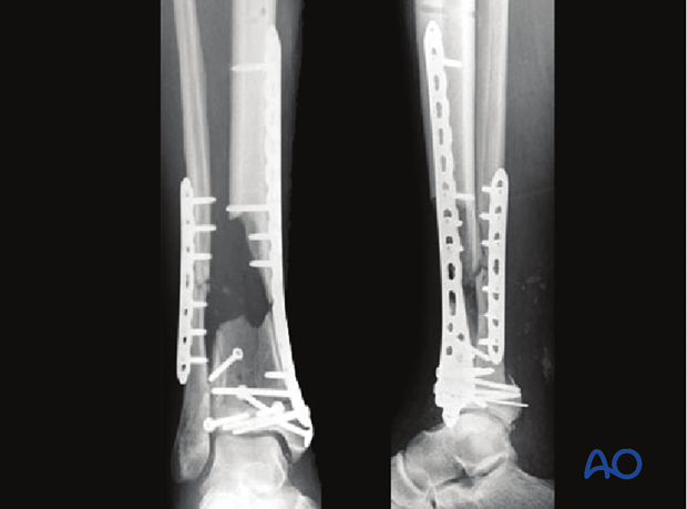 Reduction and fixation assessment of a complete articular multifragmentary distal tibia fracture