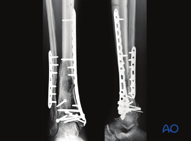 Radiographic example of a complete articular multifragmentary distal tibia fracture treated with traditional cloverleaf plate