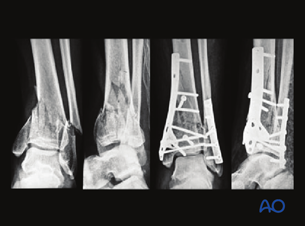 Example of a complete articular multifragmentary distal tibia fracture treated with double-plate technique