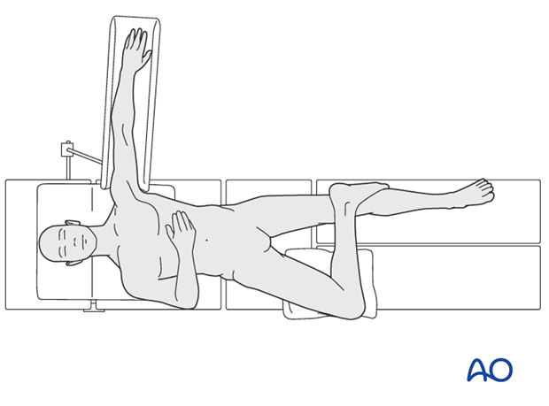 Supine position - figure-of-four