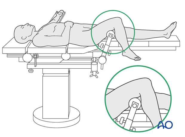 Supine position on a radiolucent table with knee support