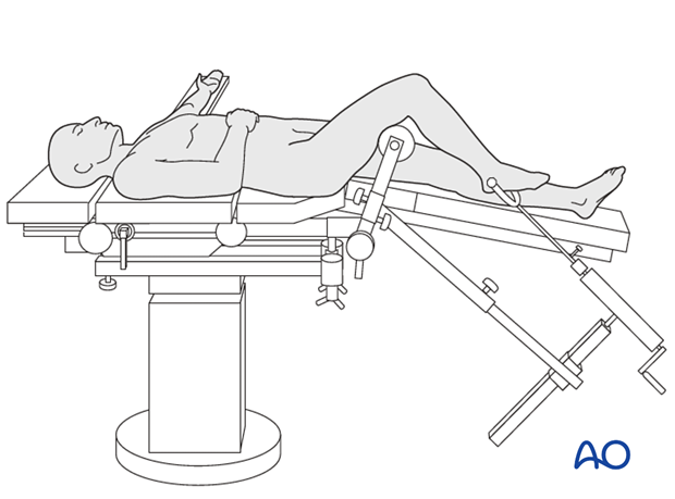 Supine position on a radiolucent traction table