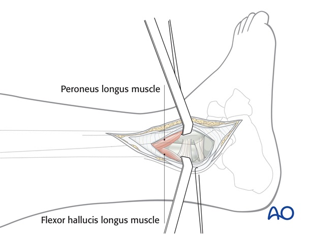 lateral approach