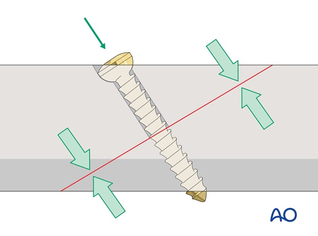 lag screw and neutralization plate