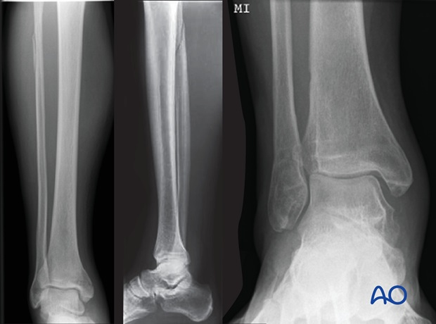 syndesmosis injury fibulo tibial positioning screw