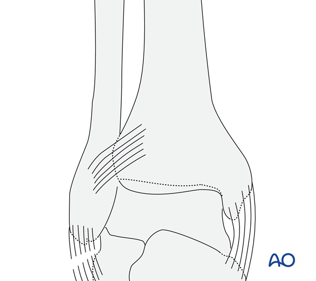 Rupture of the lateral collateral ligaments (AO/OTA 44A1.1)