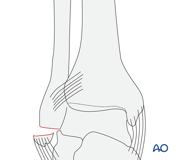 Avulsion of the tip of the lateral malleolus (AO/OTA 44A1.2)
