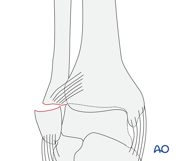 Transverse fracture of the lateral malleolus (AO/OTA 44A1.3)