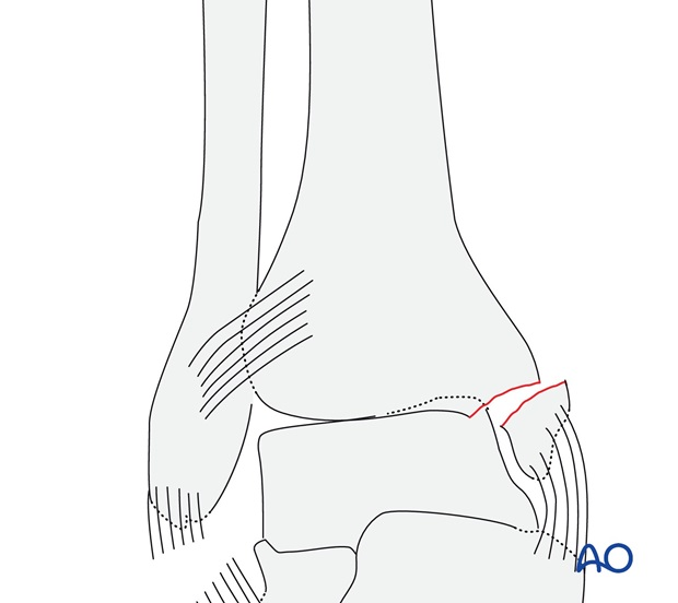 Rupture of the lateral collateral ligaments (AO/OTA 44A2.1)
