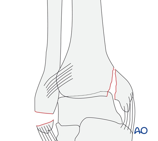 Avulsion of the tip of the lateral malleolus (AO/OTA 44A2.2)