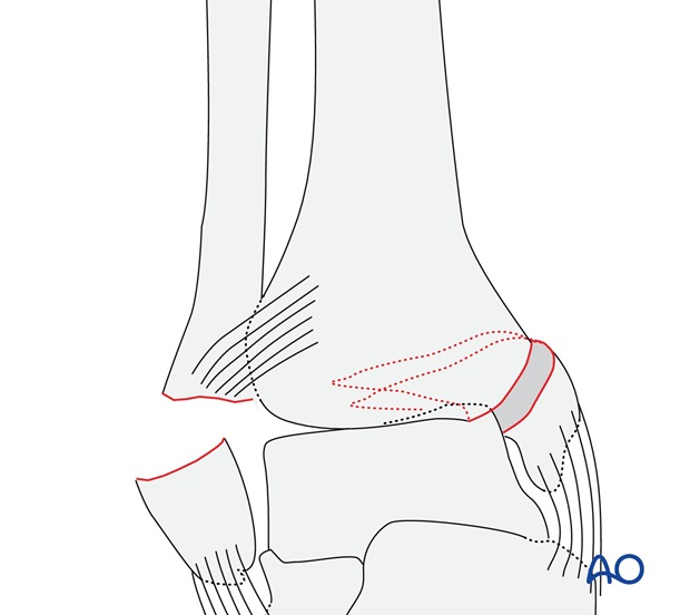 Transverse fracture of the lateral malleolus (AO/OTA 44A3.3)