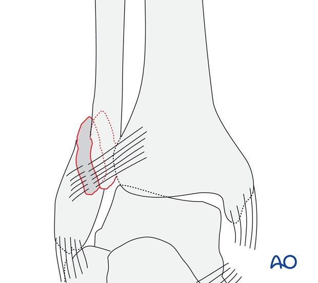 Simple, with ruptured medial collateral ligament (AO/OTA 44B2.1)