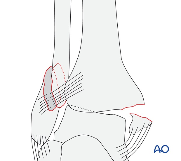Simple, with fracture of the medial malleolus (AO/OTA 44B2.2)