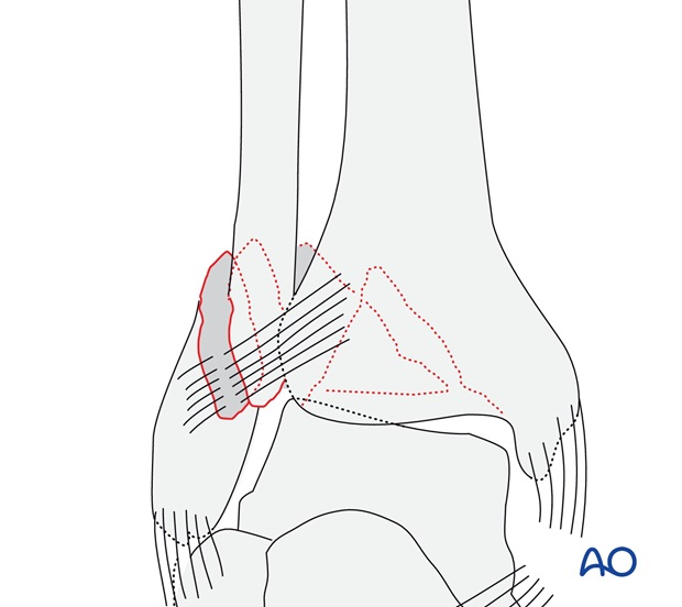 Simple, with ruptured medial collateral ligament (AO/OTA 44B3.1)