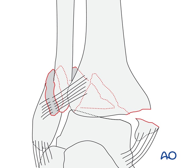 Simple, with fracture of the medial malleolus (AO/OTA 44B3.2)