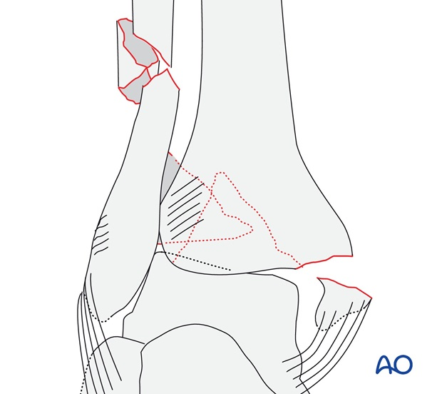 With fracture (medial malleolus) and a Volkmann's (AO/OTA 44C2.3)
