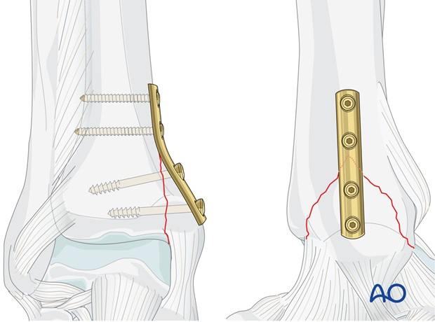 infrasyndesmotic medial fracture with lcl rupture