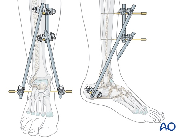 triangular external fixation