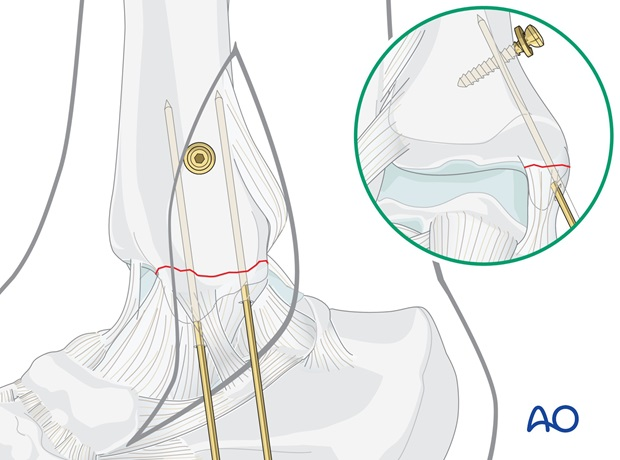medial transverse fracture tension band wiring