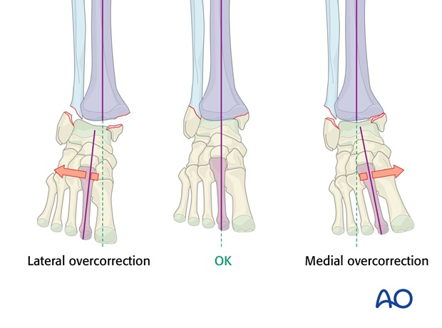 malleoli fracture management with minimal resources