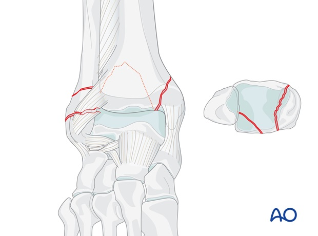 transsyndesmotic posterior lateral multifragmentary and medial fractures