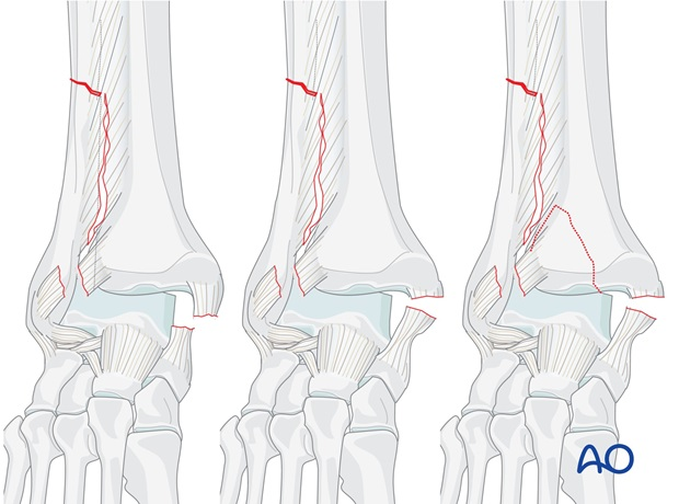 suprasyndesmotic simple fibular fracture medial injury posterior fracture