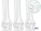 suprasyndesmotic proximal fibular fracture medial injury posterior fracture