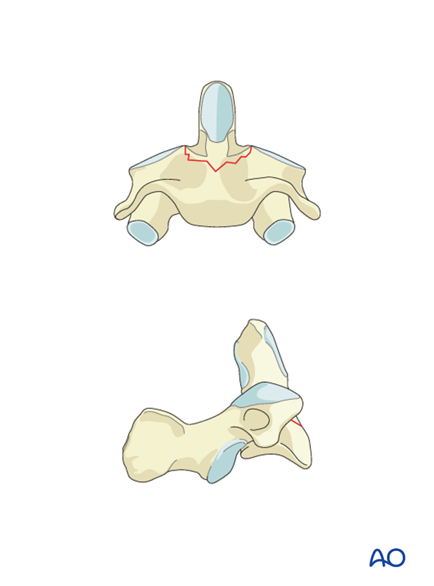 odontoid screw fixation